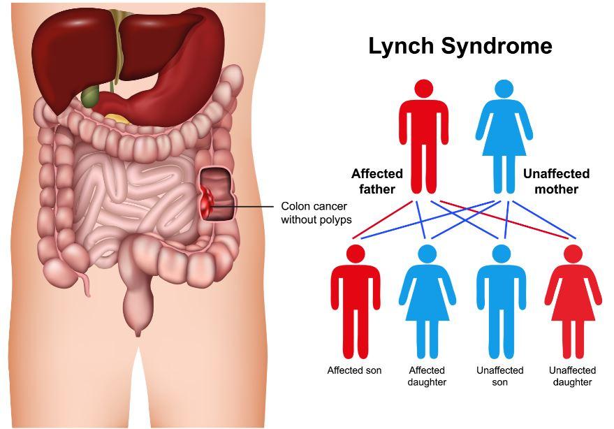 Síndrome de Lynch e Câncer colorretal hereditário não poliposo (HNPCC)