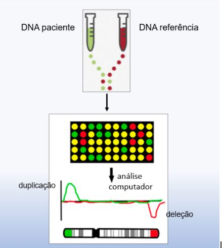 imagem ilustrando o sequenciamento do DNA do paciente e DNA referência pelo exame CGH Array