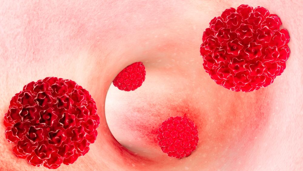 hpv infecção papilomavirus
